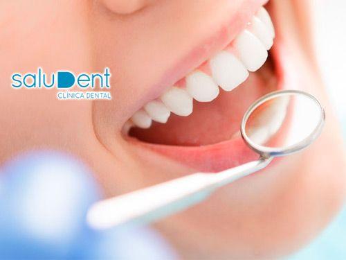 Limpieza, Blanqueamiento, Revisión y Diagnóstico de tu boca por sólo 19.90€!! Saludent, dentistas en Huércal Overa.