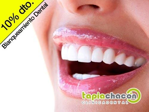 Potente Tratamiento para blanquear tu sonrisa desde casa, en Clínica Dental Tapia Chacón de Olula del Río – 10% Descuento.