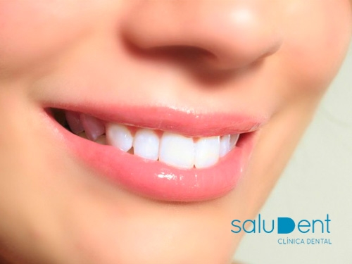 Dentistas en Huércal-Overa: Blanqueamiento Dental GRATIS al realizar el tratamiento de Ortodoncia en Saludent