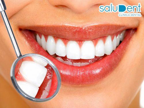 ¿Necesitas ir al Dentista pero no te decides? Saludent, clínica dental- dentistas en Huércal-Overa