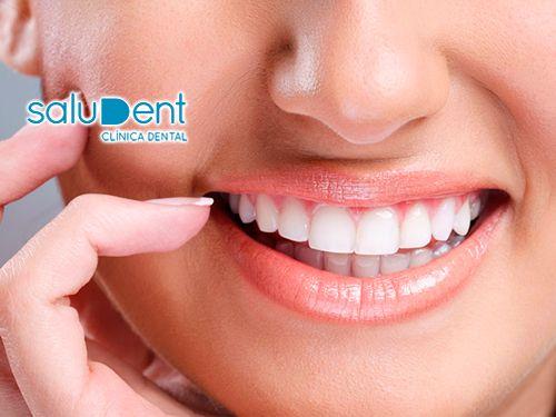Blanqueamiento, Limpieza, Revisión y Diagnóstico de tu boca por 150€!!! en Saludent, clínicas en Huércal-Overa